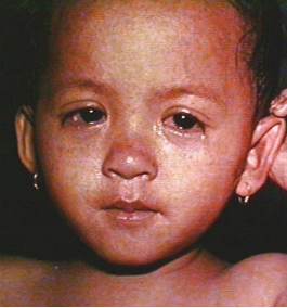 Eyes-of-child-with-measles.jpg